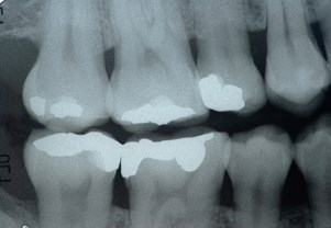 X-Ray of teeth with fillings that contain mercury