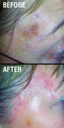 Before and after melanoma removal