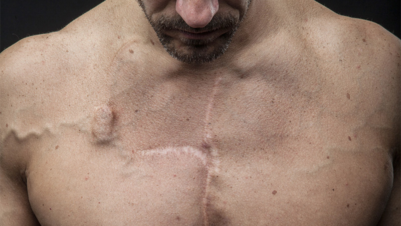 Man with cancer scars on his chest